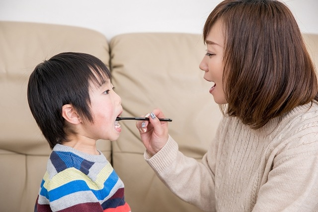 お子さまの虫歯予防について
